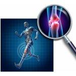 Hlavnězdravě Kloubní výživa Active Chondroitin MSM Glukosamin