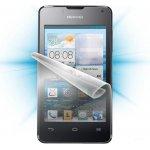 Ochranná fólie ScreenShield Huawei Nova Smart - displej