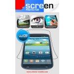 Winner ochranná fólie pro Nokia Lumia 625 (2ks)