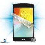 Screenshield™ LG D390N F60 ochrana displeje