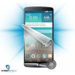 Ochranná fólie ScreenShield LG D855 G3