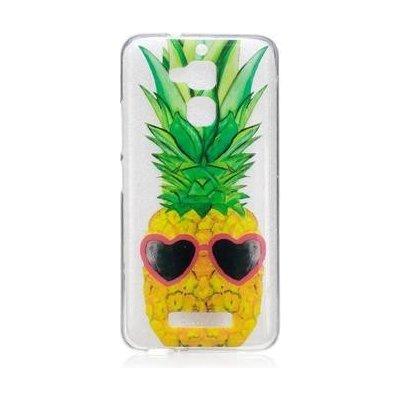 Pouzdro Softy gelové Asus Zenfone 3 Max ZC520TL - ananas